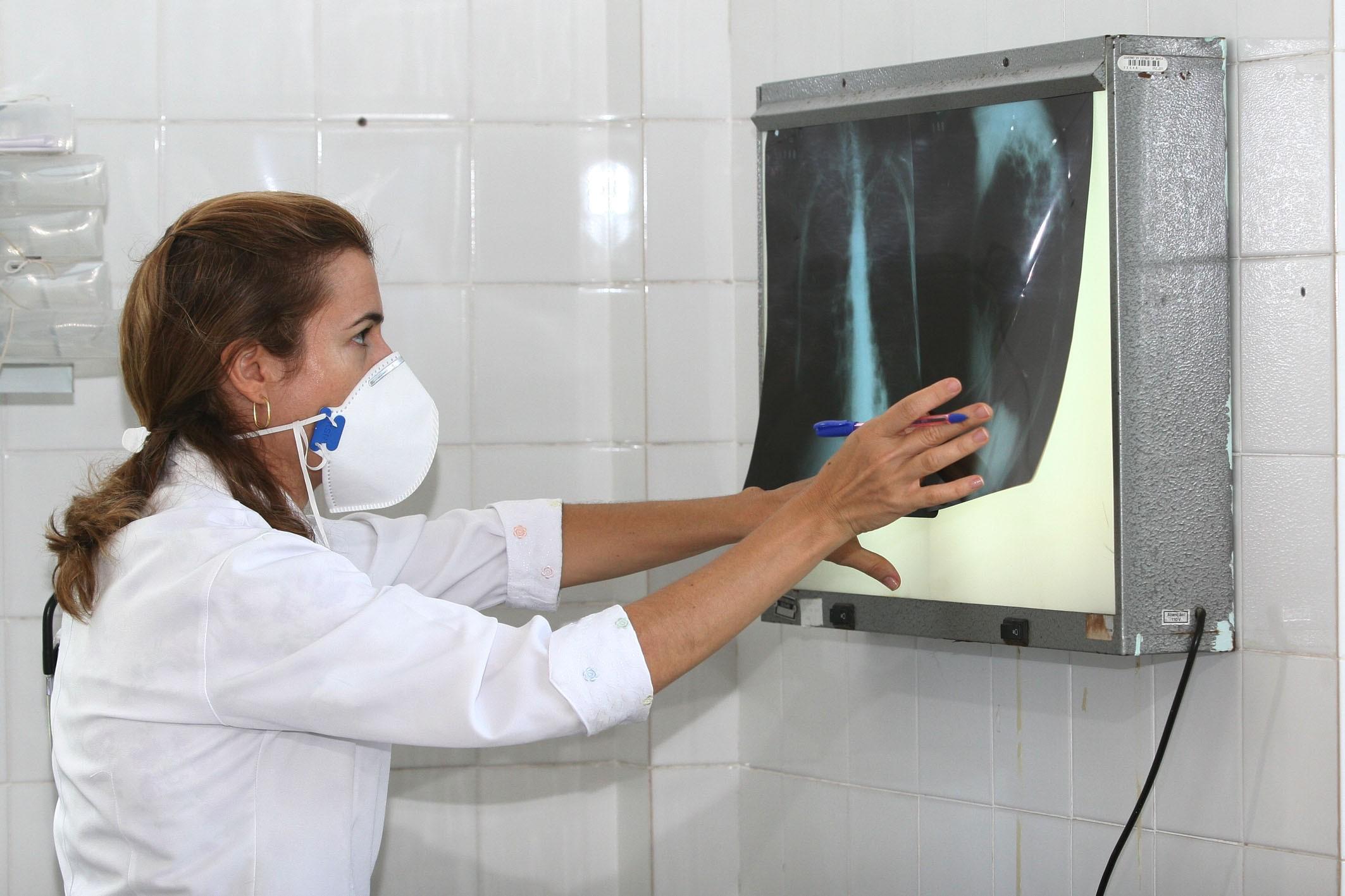 MP pede providências para controle de casos de tuberculose