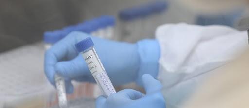 82% dos mortos por coronavírus tinham outras doenças em Maringá