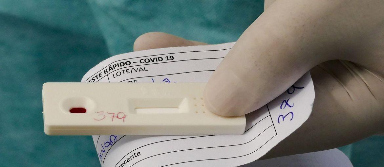 Farmácia de Maringá oferece exame rápido antígeno de Covid-19