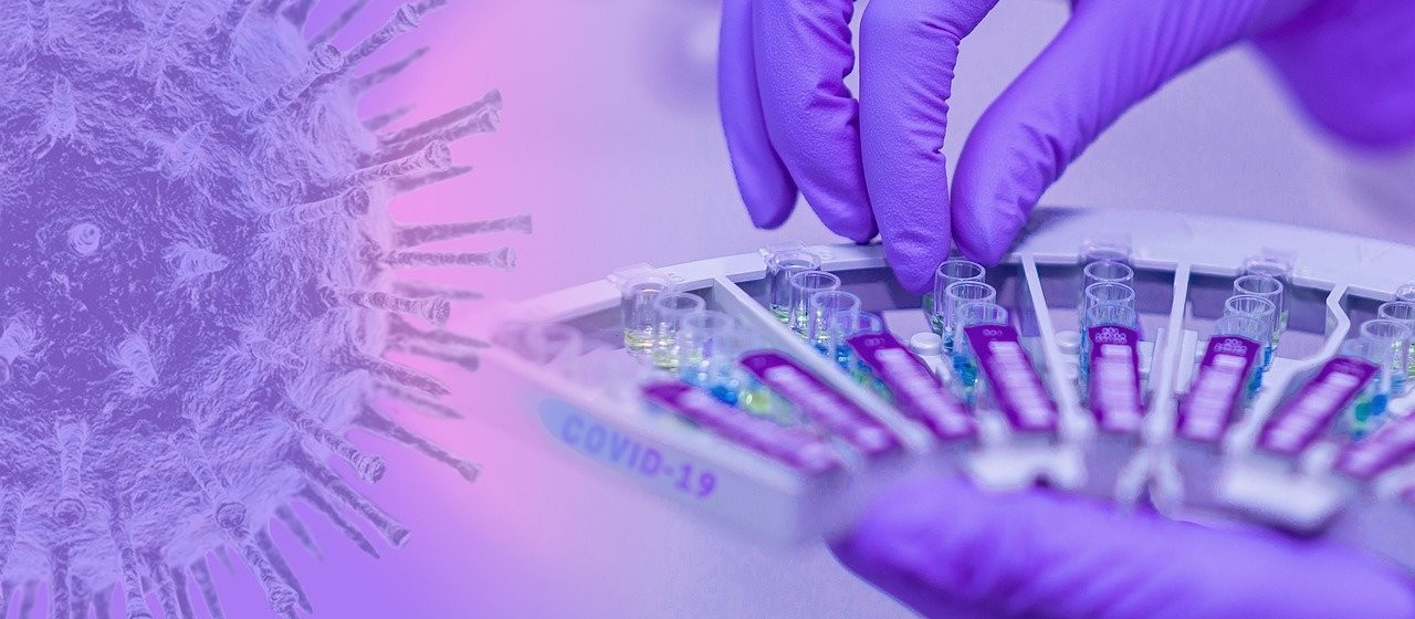 Coronavírus: Risco de contágio cai de 'alto' para 'moderado' em Maringá