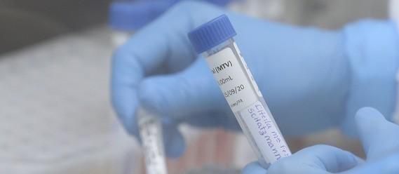 Testes são indispensáveis enquanto não se tem uma vacina contra o coronavírus