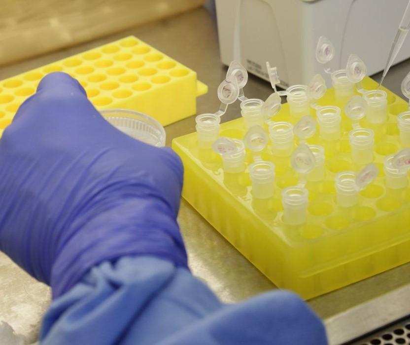 Sarandi quer comprar testes rápidos para o novo coronavírus