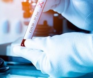 Município confirma: Maringá tem 4 mortes decorrentes de coronavírus