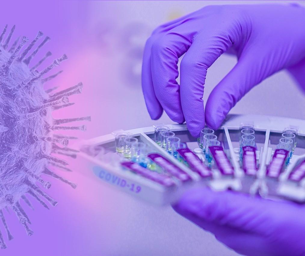 Confira o boletim desta quarta-feira (14) sobre o coronavírus em Maringá