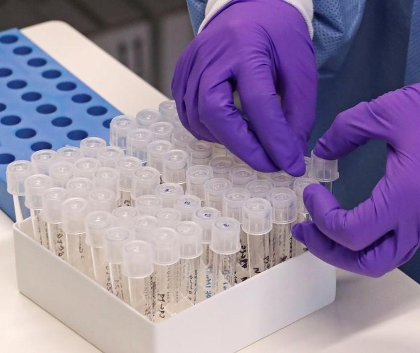 Maringá tem 39 casos positivos de coronavírus