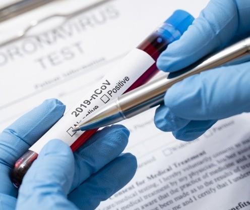 Maringá: Em 7 dias, 11 pacientes se recuperaram da Covid-19