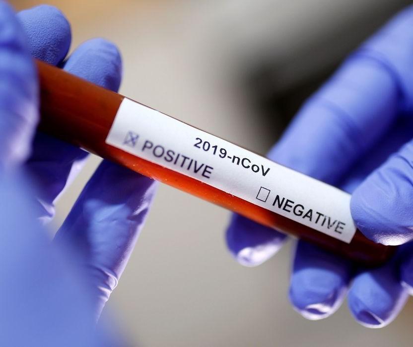 80% das transmissões do coronavírus são por pessoas assintomáticas, diz pneumologista
