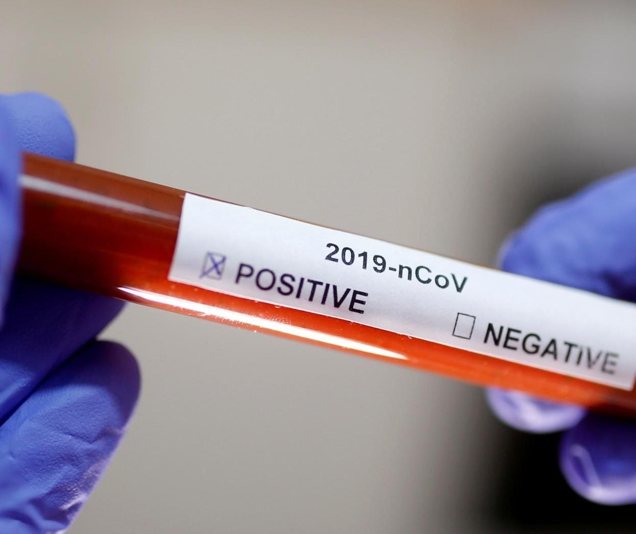 Mais dois casos de coronavírus são confirmados em Cianorte