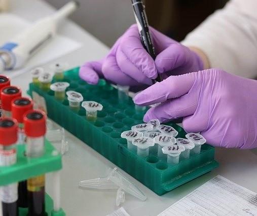 Coronavírus: Veja os dados do boletim desta sexta-feira (31), em Maringá