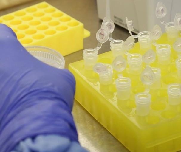 Paranavaí confirma primeiro caso de coronavírus