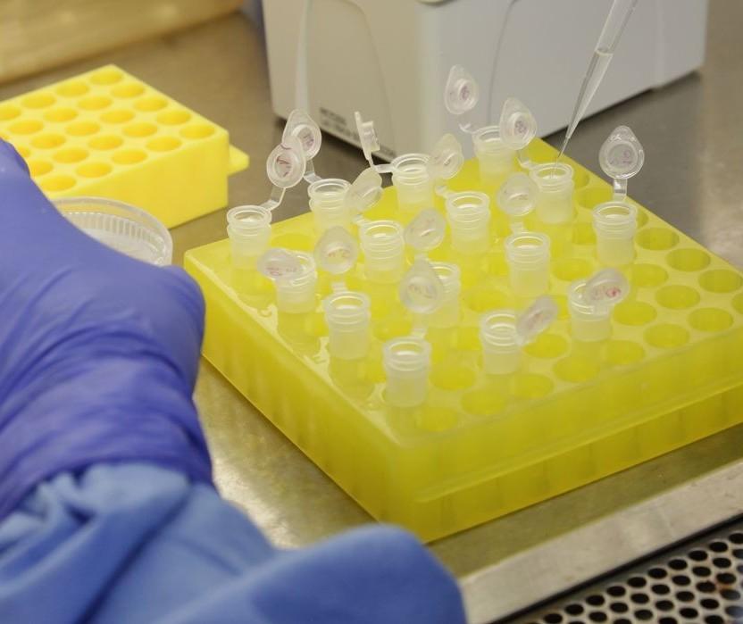 Cianorte tem um caso confirmado de coronavírus e outro sob suspeita