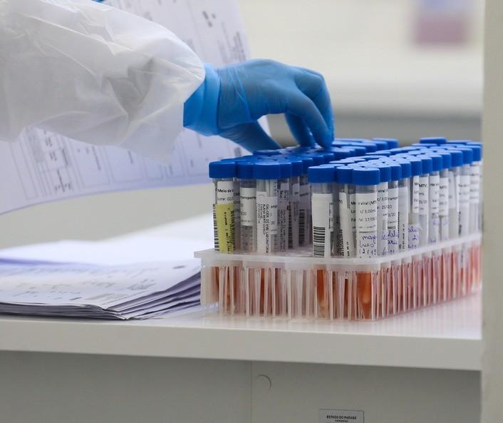 Coronavírus em Maringá: Veja os dados do boletim desta quarta-feira (15)