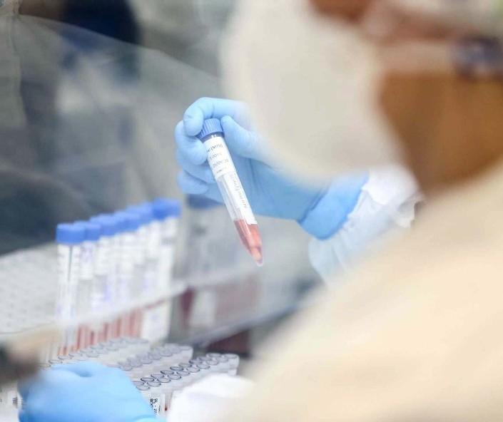 Maringá registra dois casos da variante britânica do coronavírus